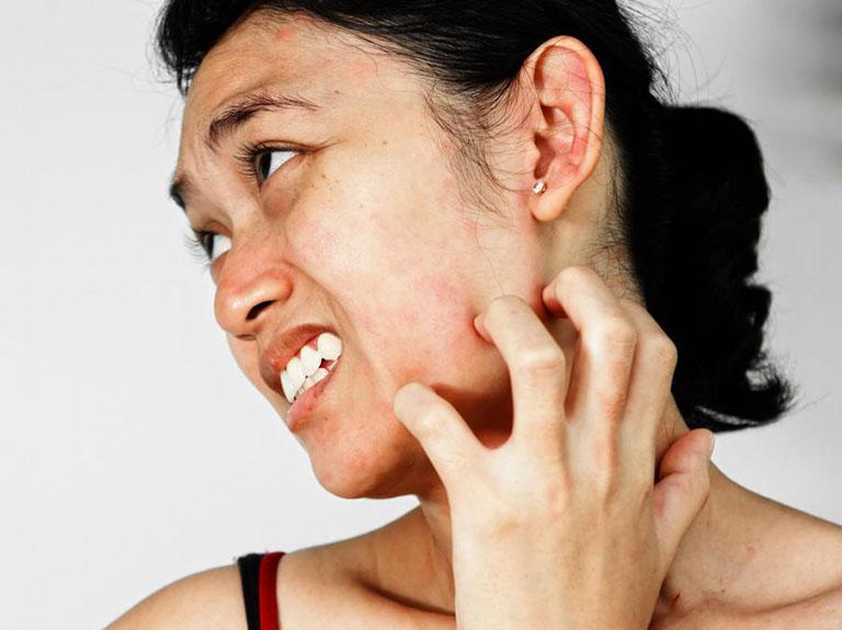 Ngứa da mặt