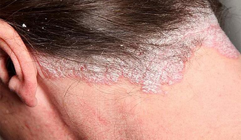 vẩy nến gây ngứa da ở cổ