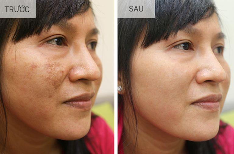 Làn da của tôi trước và sau khi sử dụng Vương Phi trị tàn nhang