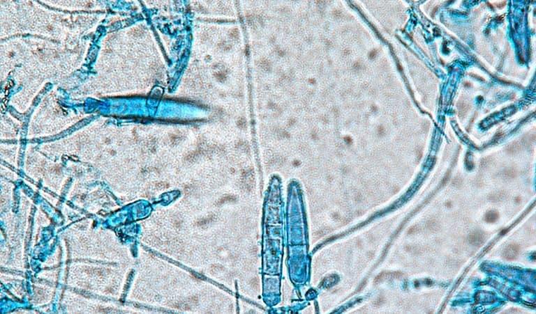 Hình ảnh dưới kính hiển vi của nấm Microsporum gây bệnh nấm da đầu.
