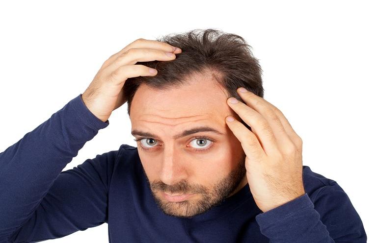 Nguyên nhân gây rụng tóc ở nam giới thường do di truyền