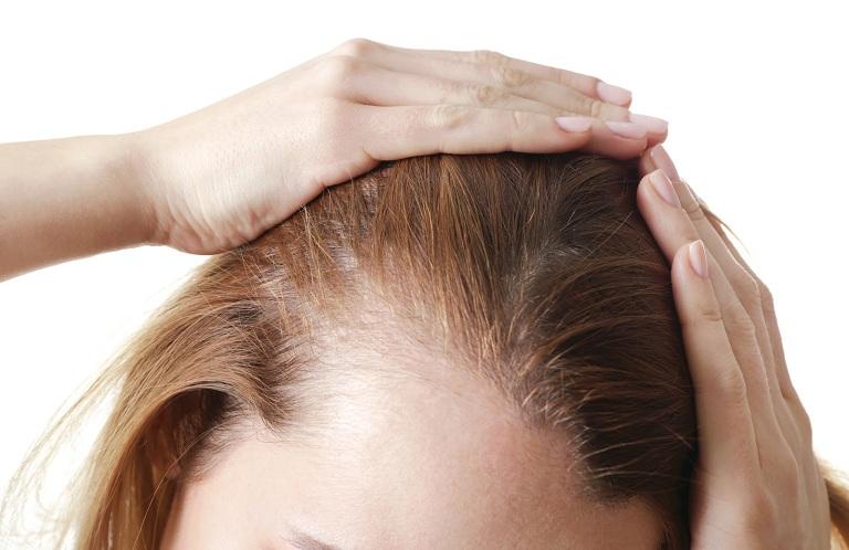 Nguyên nhân rụng tóc sau sinh do rối loạn nội tiết
