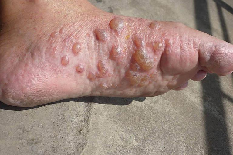 Nguyên nhân gây nổi mụn nước ngứa ở lòng bàn tay, bàn chân