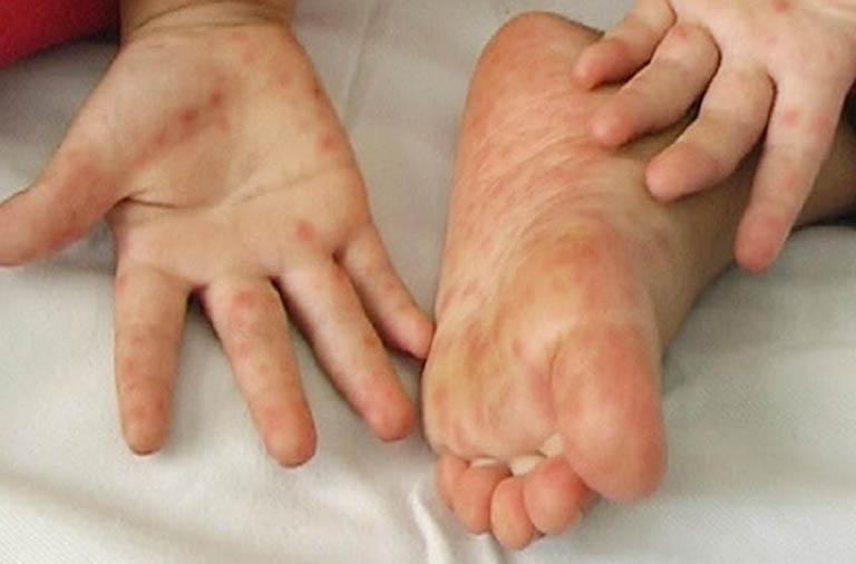 Nổi mụn nước ngứa ở lòng bàn tay, bàn chân và cách chữa trị