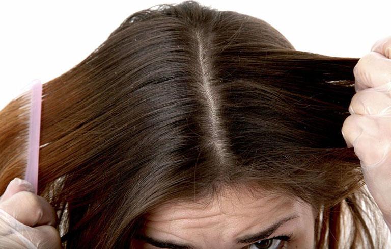 nước muối trị nấm da đầu