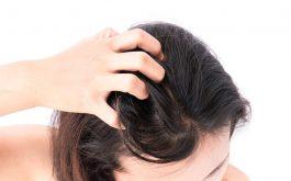 Nếu chỉ dựa vào dấu hiệu lâm sàng ban đầu, người ra rất dễ nhầm lẫn giữa nấm da đầu với gàu.
