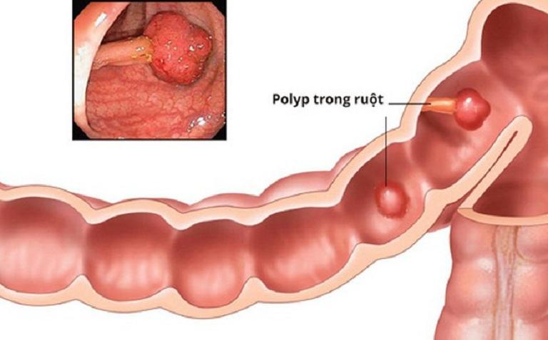 Polyp đại tràng có 2 loại là polyp tăng sản và polyp u tuyến