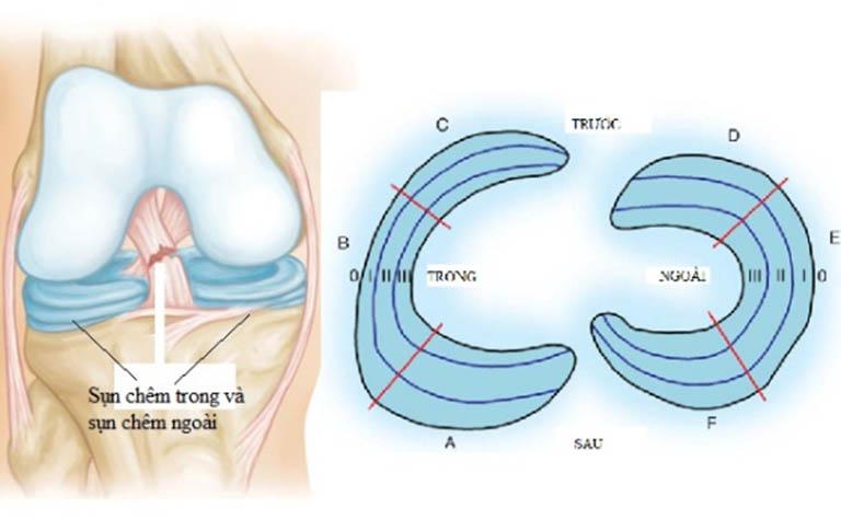 Rách sụn chêm khớp gối: Biểu hiện và phương pháp điều trị
