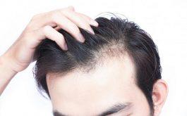 Nguyên nhân rụng tóc ở nam giới là gì?