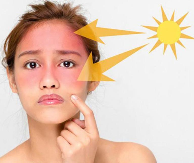Tác hại của ánh nắng mặt trời cũng là nguyên nhân gây tàn nhang
