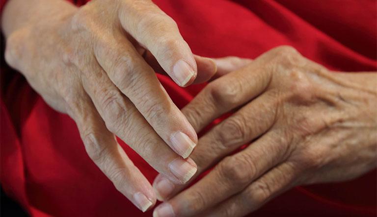 cách chữa bệnh tê tay