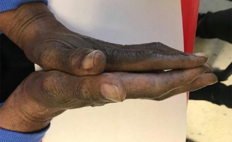 tê tay trái là bệnh gì