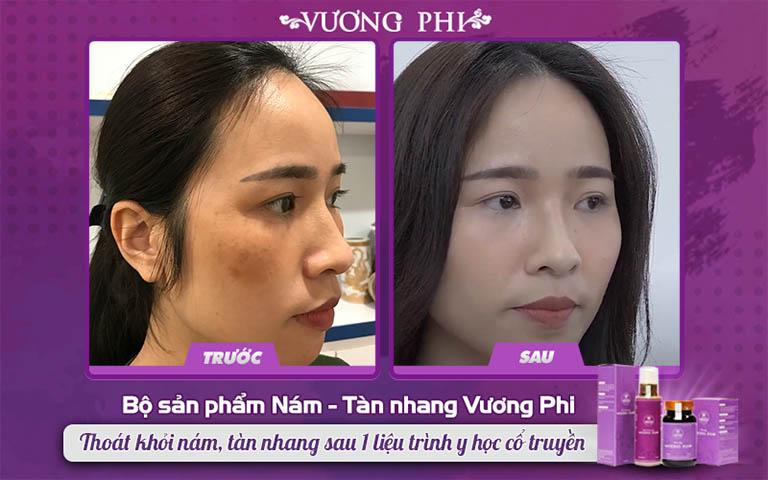 Chị Thanh Thảo, bị nám, tàn nhang sau sinh tin dùng Vương Phi và đạt được kết quả bất ngờ