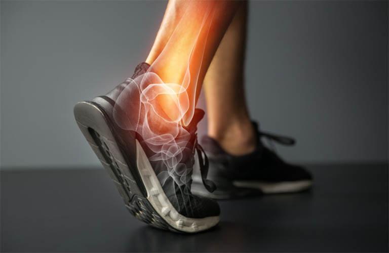 Thoái hóa khớp cổ chân: Nguyên nhân và hướng điều trị