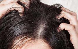 Các loại thuốc đặc trị nấm da đầu