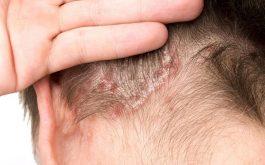 Thuốc trị bệnh vảy nến da đầu