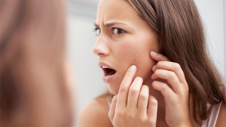 Viêm nang lông có thể khiến người bệnh mất tự tin khi tiếp xúc với đám đông