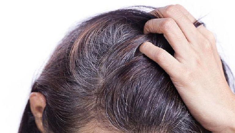 Người bị tóc bạc sớm thiếu chất gì?