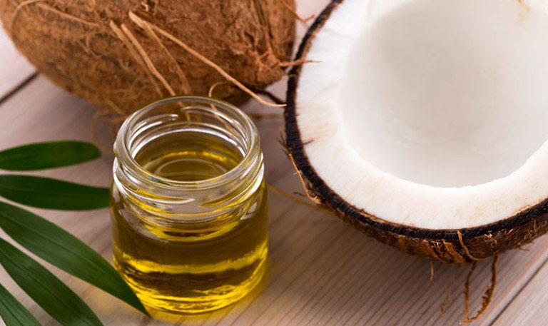 Chữa nấm da đầu bằng dầu dừa giúp cải thiện triệu chứng của bệnh