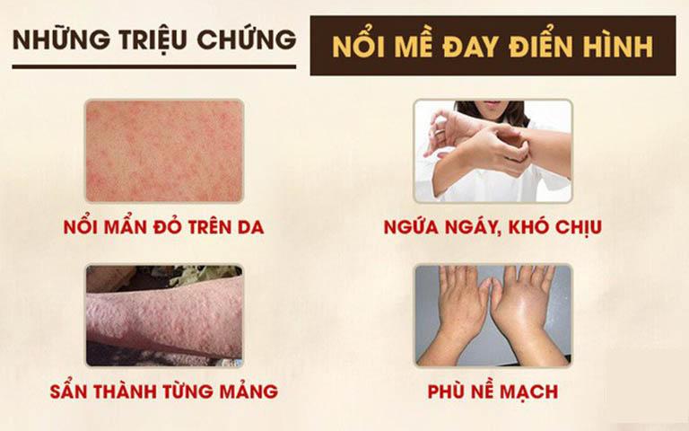 Những triệu chứng nổi mề đay phổ biến