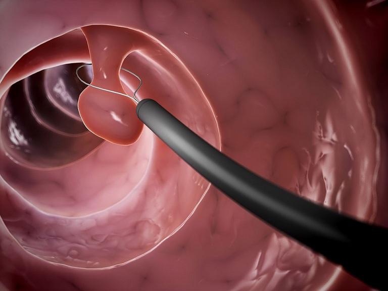 Thực hiện cắt bỏ polyp đại tràng trong quá trình tầm soát
