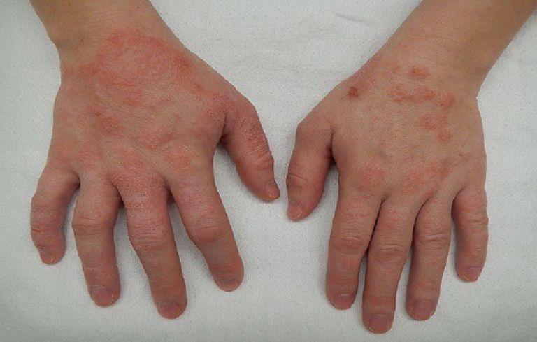 Triệu chứng bệnh viêm da cơ địa ở tay