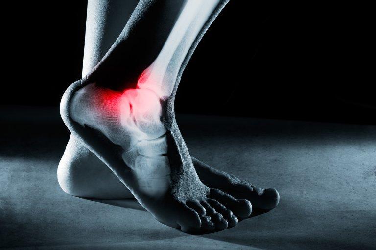Triệu chứng viêm khớp cổ chân