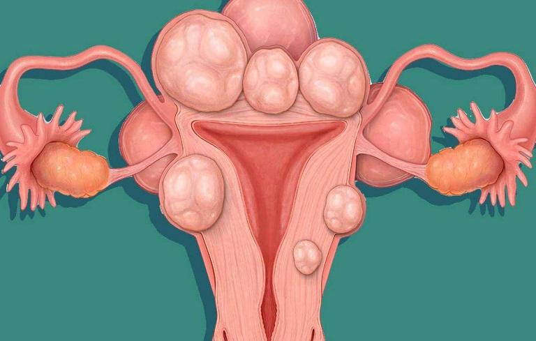 U xơ tử cung là một trong những bệnh lý mà chúng ta cần đề phòng