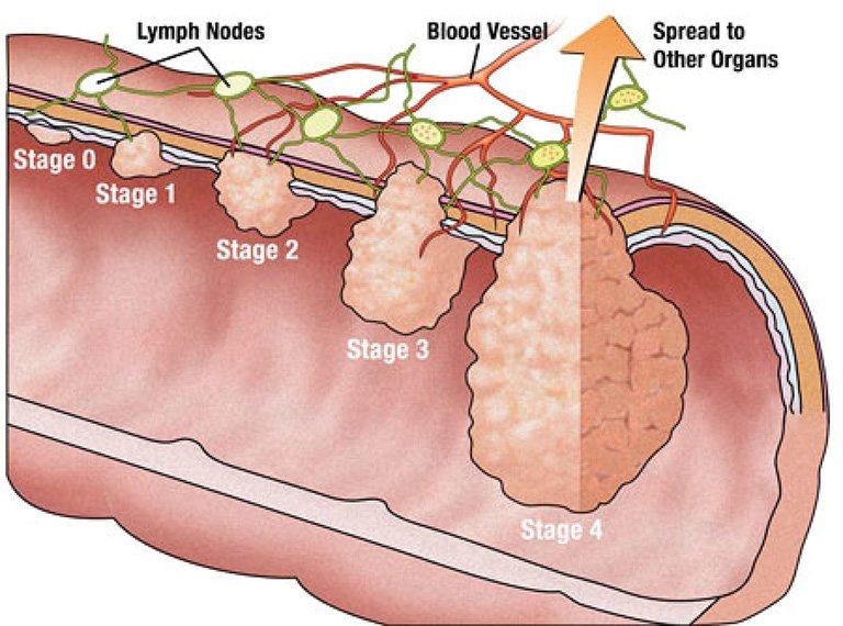 Ung thư đại tràng bao gồm 4 giai đoạn