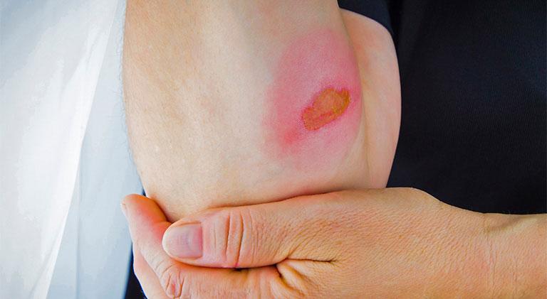 tổn thương da có thể gây vẩy nến
