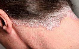 Bệnh vảy nến da đầu có lây không?