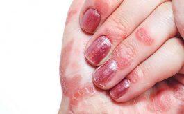 Bệnh vảy nến móng tay