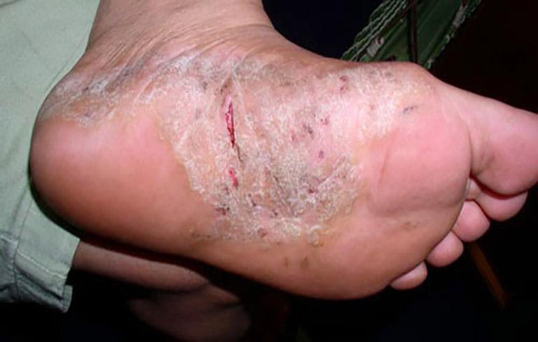 Da lòng bàn chân, mu bàn chân khô nứt,chảy máu, đóng thành vảy màu trắng đục