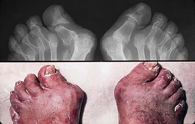 Vảy nến ở chân làm tăng nguy cơ mắc viêm khớp vảy nến