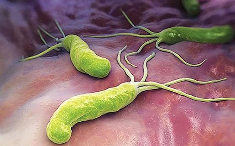 Vi khuẩn HP nguyên nhân gây hôi miệng