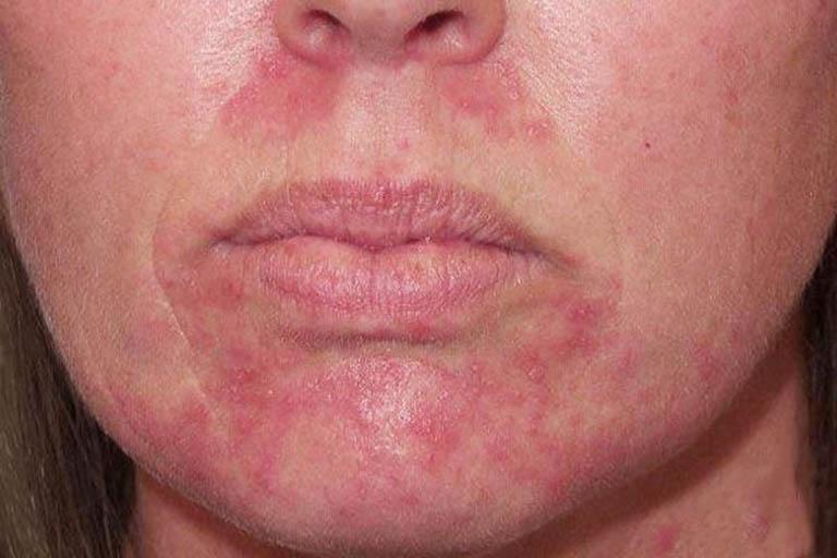 Tổng quan về bệnh viêm da cơ địa xung quanh miệng
