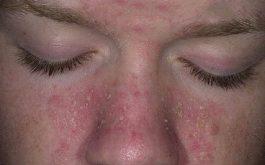 Hình ảnh viêm da dầu ở cánh mũi