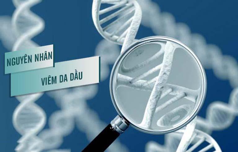 Nguyên nhân viêm da dầu do di truyền