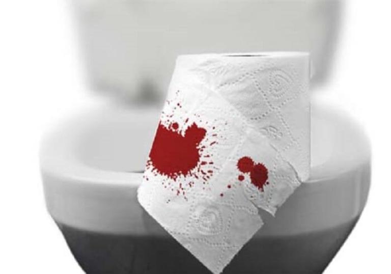 Phân dính máu là triệu chứng điển hình của ung thư