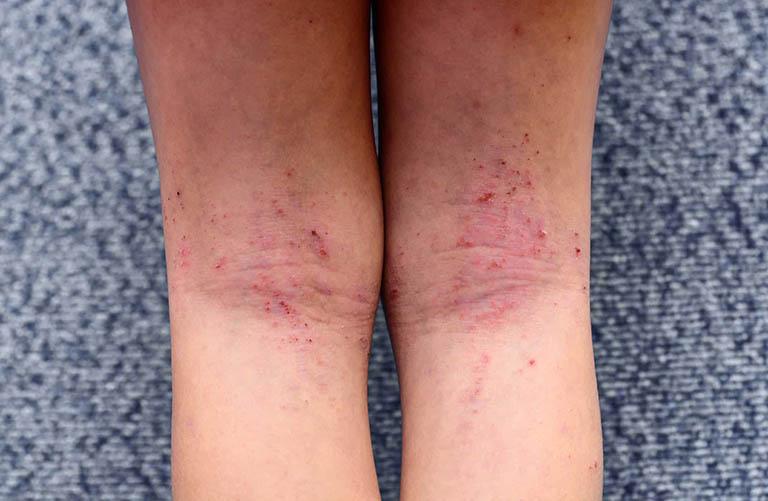 Viêm da dị ứng tiếp xúc côn trùng - Cách điều trị và phòng ngừa