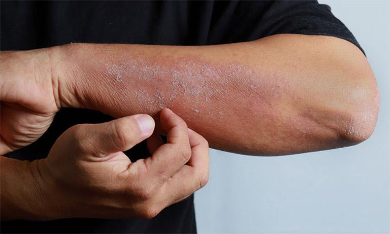 Tuyệt đối không nên gãi quá mạnh nên vùng da bị tổn thương để tránh tình trạng lây lan sang các vùng da lành khác