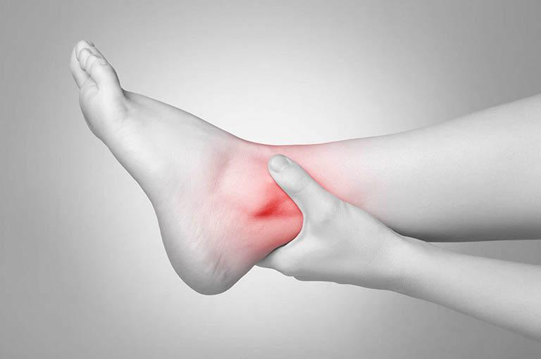 Viêm đau khớp mắt cá chân và cách điều trị