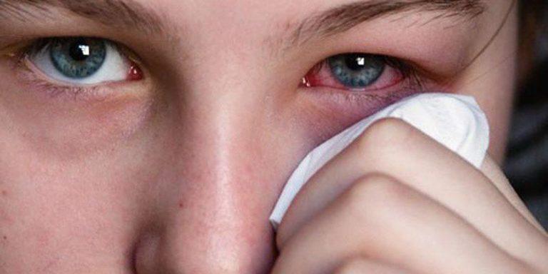 Viêm kết mạc là biến chứng thường gặp của viêm khớp phản ứng.
