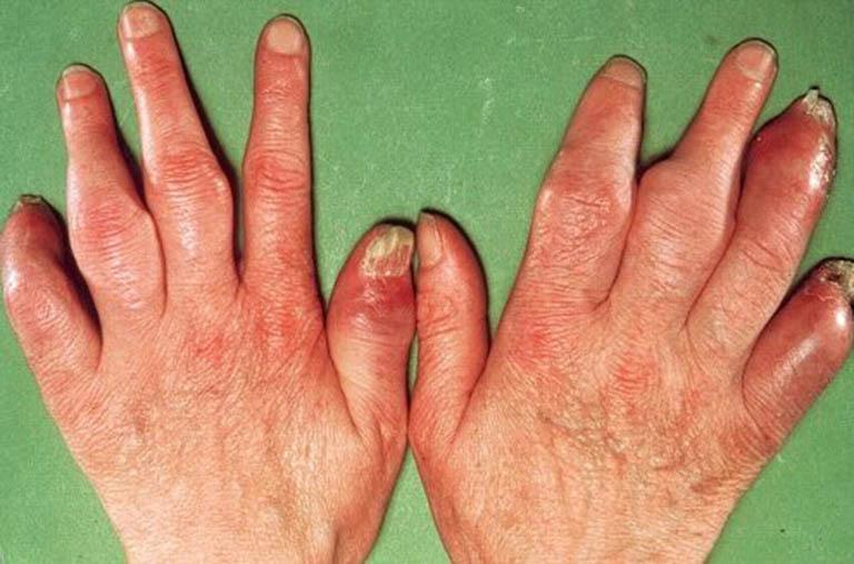 Viêm khớp vẩy nến gây biến dạng khớp
