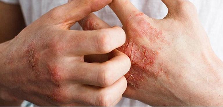Viêm khớp vảy nến là bệnh tự miễn xảy ra khi hệ thống miễn dịch bị rối loạn
