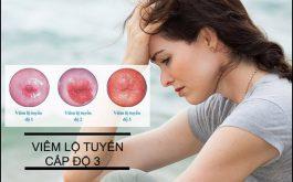 Viêm lộ tuyến cổ tử cung độ 3 là tình trạng nặng và rất khó điều trị