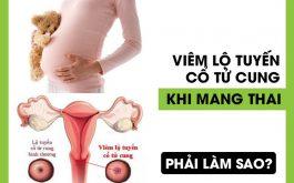 Viêm lộ tuyến cổ tử cung khi mang thai khiến nhiều mẹ lo lắng