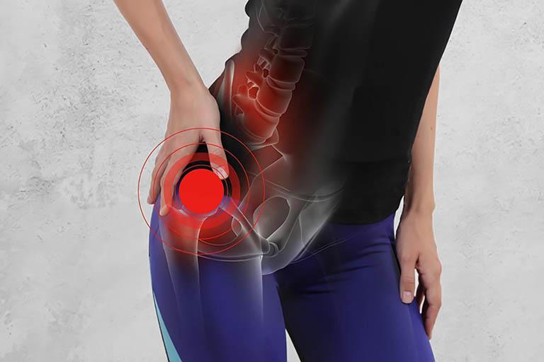 Nguyên nhân dẫn đến viêm màng hoạt dịch khớp háng