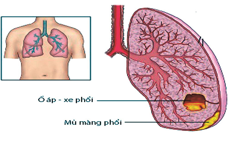 Triệu chứng của áp xe phổi chủ yếu xoay quanh vấn đề tràn mủ, ộc mủ từ ổ áp xe