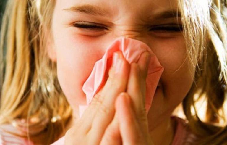 Ngạt và sổ mũi và triệu chứng đặc trưng của bệnh viêm mũi xuất tiết